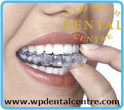Mouth guard Treatment  At west Perth dental centre
