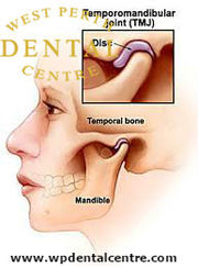 TMJ(Temporomandibular Joint)  at  west Perth dental centre